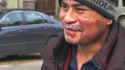 Latino man attacked with battery acid in Milwaukee