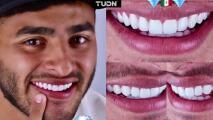 ¡Alexis Vega se incrusta diamantes en sus dientes!