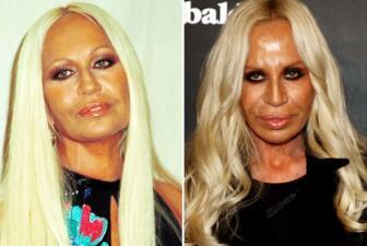 El terrible cambio de Donatella Versace