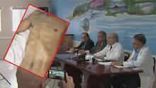 Médicos en Miami piden a organismos internacionales interceder para atender a huelguistas cubanos