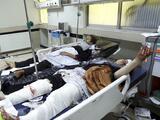 Tres bombas estallaron cerca de una escuela en Afganistán dejando al menos a 50 personas muertas