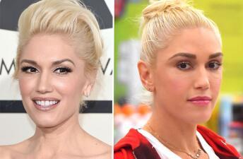 ¿Qué se hizo Gwen Stefani en el rostro?