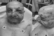 Un anciano está en condición reservada en el Jackson Memorial luego de una golpiza en el Metromover