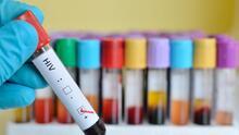 Contra el VIH: hay protección más allá del condón