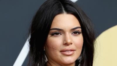 Kendall Jenner muestra sus cicatrices de acné sin complejos y anima a otros jóvenes a hacerlo