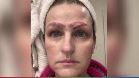 Termina con 4 cejas por culpa de un mal procedimiento estético
