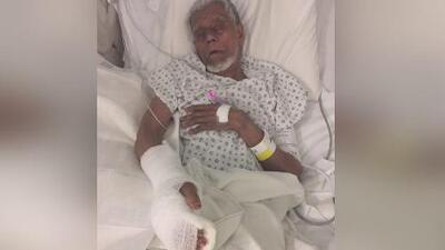 Un hombre de 72 años de edad, gravemente herido por un perro pitbull en El Bronx