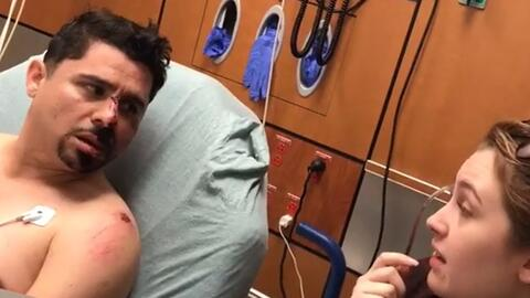 Larry Hernández muestra un video inédito de cuando perdió los dientes (y se vuelve a 'accidentar' en bicicleta)