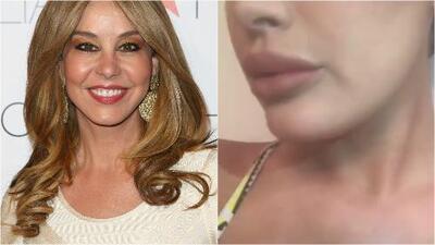 Myrka Dellanos defendió a su hija Alexa Dellanos de los que la criticaron por inyectarse los labios