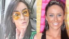 """La presentadora Inés Gómez Mont """"estrena"""" nariz: mira el antes y después"""