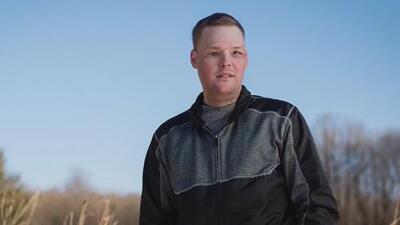 Un trasplante de rostro le cambia la vida a un joven que había intentado quitarse la vida