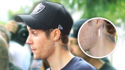 Justin Bieber ha lucido en una semana un 'piercing' nuevo, diamantes en los dientes y ahora: parches medicinales
