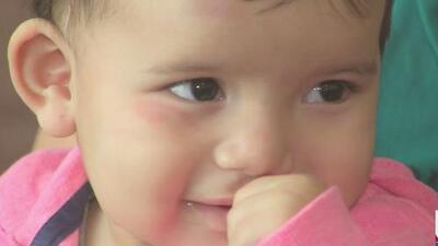 Otorgan visa humanitaria a esta bebé que será operada de labio leporino