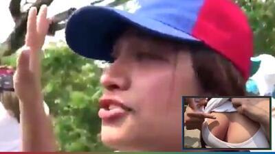(Video) Venezolana enseña los pechos para demostrar la agresión de la que fue víctima