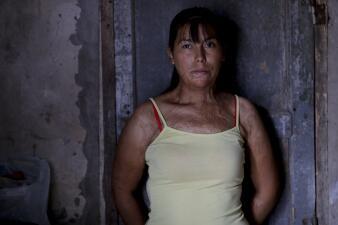 """Los rostros de la violencia de género en Argentina: supervivientes y luchadoras que gritan """"Ni una menos"""""""