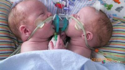Bebés siameses salen del hospital, después de ser separados quirúrgicamente