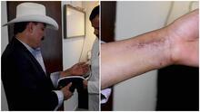 Al Chapo de Sinaloa le prohibieron subirse (por ahora) a los caballos tras caerse de uno y así reacciona