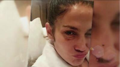 Clarissa Molina trajo las redes a J Lo con un ojo morado y se dice que fue Shannon de Lima