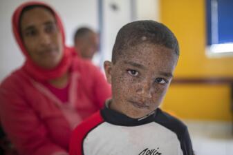 Cuando la luz es letal: los niños que luchan contra un raro trastorno de la piel