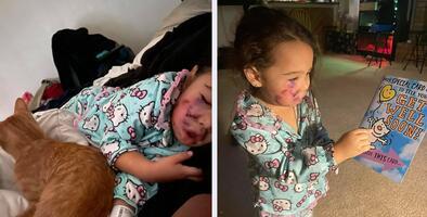 Madre denuncia que su hija de 3 años fue atacada por un perro en restaurante al norte de Houston