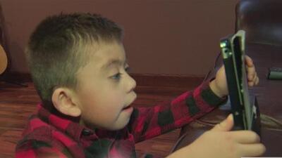 ¿Qué es el síndrome de Smith-Magenis, una condición que limita la vida de los menores?