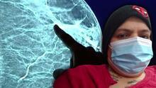 No fue al médico por miedo a contagiarse de covid-19 y ahora sufre cáncer de seno en fase 4