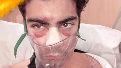 """""""Me dieron por muerto"""": hijo del productor de Mira Quién Baila relata el drama que vivió cuando lo atropellaron"""