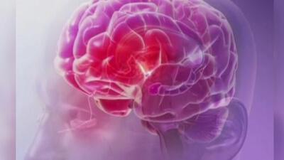 Estos son los síntomas de un derrame cerebral