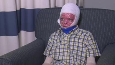 Ayuda de Impacto: Este niño vive con el 95% del cuerpo quemado por un incendio en su casa