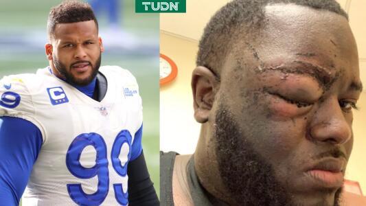 Aaron Donald de Rams es demandado por golpear a un sujeto