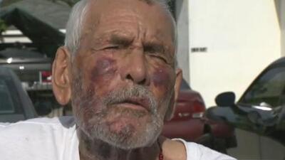 Mexicano de 92 años atacado con un ladrillo habla del arresto de la sospechosa y agradece el apoyo