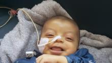Bebé de 6 meses lucha por su vida mientras espera un transplante de hígado