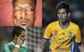 Las lesiones más insólitas del fútbol mundial