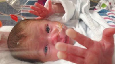 """Cuando un bebé llega demasiado temprano: """"Al verla en la incubadora entendí lo que es nacer sin estar listo"""""""