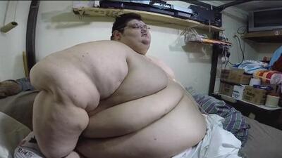 El hombre más obeso del mundo (que llegó a pesar más de 1,000 libras) está listo para ser operado en México