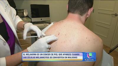 ¡Este domingo 20 de Julio regresa a Univision 'Cita con tu salud'!
