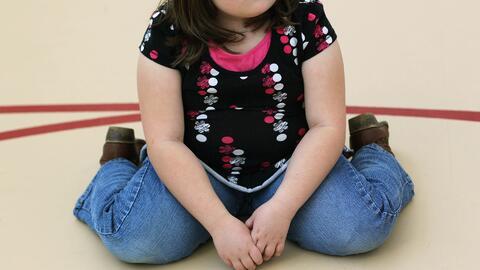 Obesidad infantil: ¿Cómo detectarla o prevenirla a tiempo?