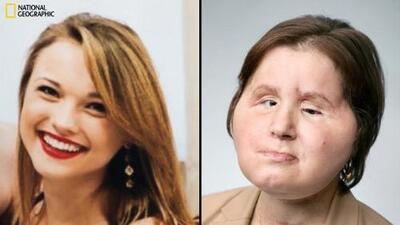 """La receptora del trasplante de cara más joven en EEUU comparte su historia para """"ayudar a otros"""""""