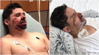 Positivo y recuperándose: así se encuentra Larry Hernández tras accidente en su bicicleta