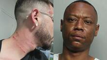 Hispano en Miami denuncia que uno de sus vecinos lo insultó y lo atacó a golpes por su orientación sexual