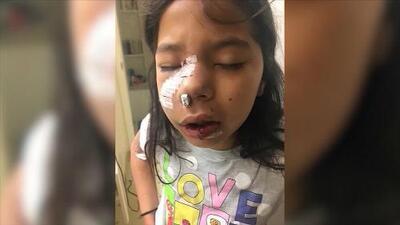 """""""El perro me mordió la cara"""": niña de 8 años narra el momento en que fue atacada por el animal"""