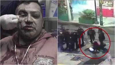 La brutal paliza de los policías a un reportero mientras informaba sobre un operativo en México