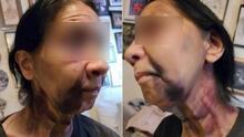 Golpean a una abuela mexicana en Los Ángeles: su presunta agresora la confundió con una asiática