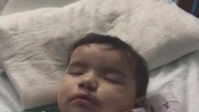 Declaran exitosa la cirugía de labio leporino de una bebé hondureña refugiada en Illinois