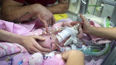 Video: Así fue la operación para salvar a la bebé con el corazón fuera del cuerpo
