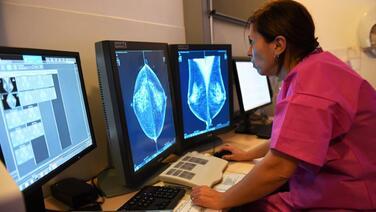 Otra crisis de salud crece: 1 de cada 4 personas ha faltado a sus despistajes de cáncer durante la pandemia