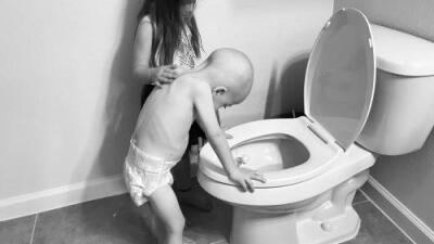 """""""Esto es cáncer infantil"""": dos fotos reflejan con crudeza la vida de un niño de 4 años con leucemia"""