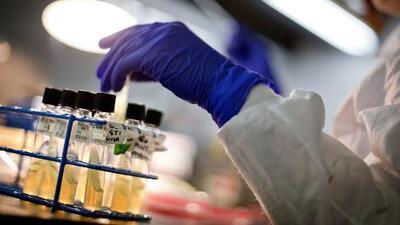 Alerta por brote de E. coli en varios estados de EEUU
