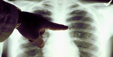 Esto es lo que debes saber sobre el cáncer de pulmón en hispanos