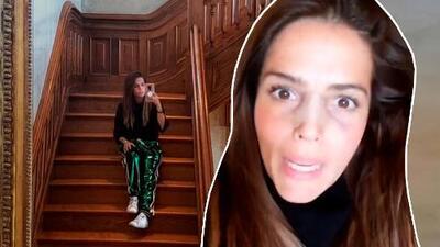 Todos notaron el cambio en la cara de Claudia Alvarez, pero ella aclara que pasó